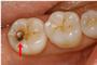 奥歯のむし歯 治療前