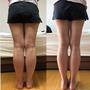 お客様にいただいたダイエット後の写真。30代のお客様ダイエット写真美ビフォーアフター。スカートを履いた女性が後ろ向きになっている写真が2枚並んでいる。左がダイエット前で、右がダイエット後。太ももとふくらはぎの間に隙間ができているのがみて取れる。
