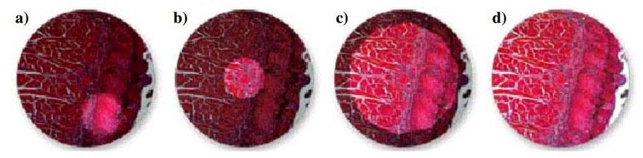 Réglage de Köhler document Claude Gonon Microscopie