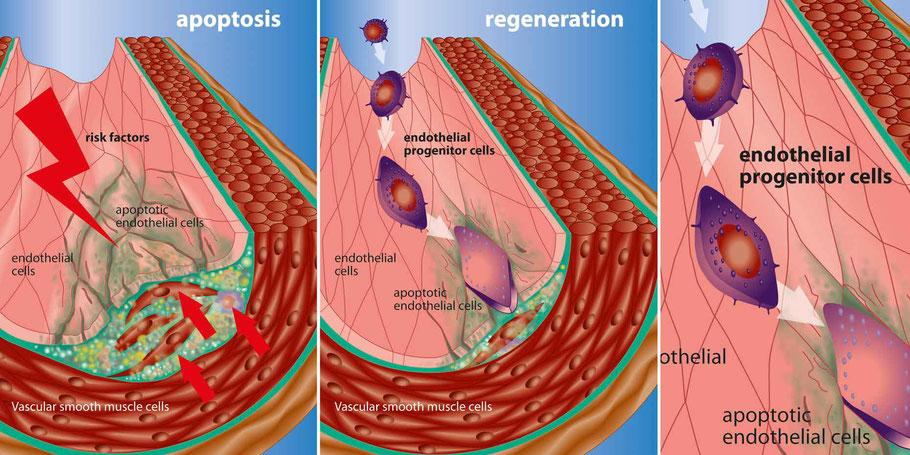 Apoptose und Regeneration von Endothelialzellen