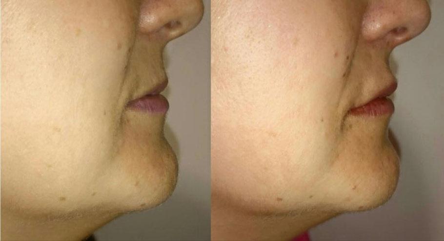 Antes y después de relleno en labio superior. Demo con clientes realizada 9-oct-2015