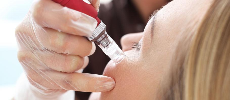 La belle Kosmetikstudio Microneedling Anwendung Detail Gesicht Behandlung
