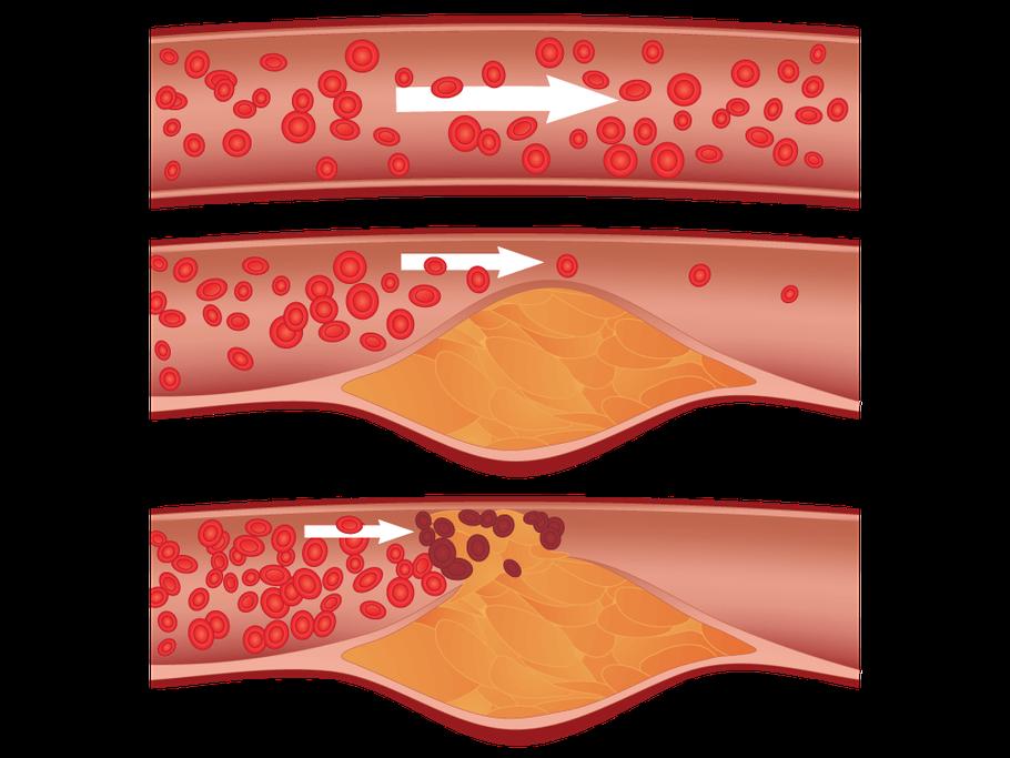 Bild: Gesunde Arterien und Arteriosklerose (Arterienverkalkung)