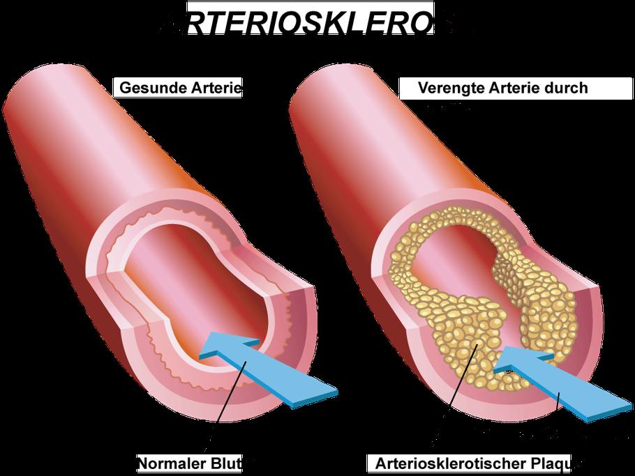 Bild: Entstehung der Arteriosklerose