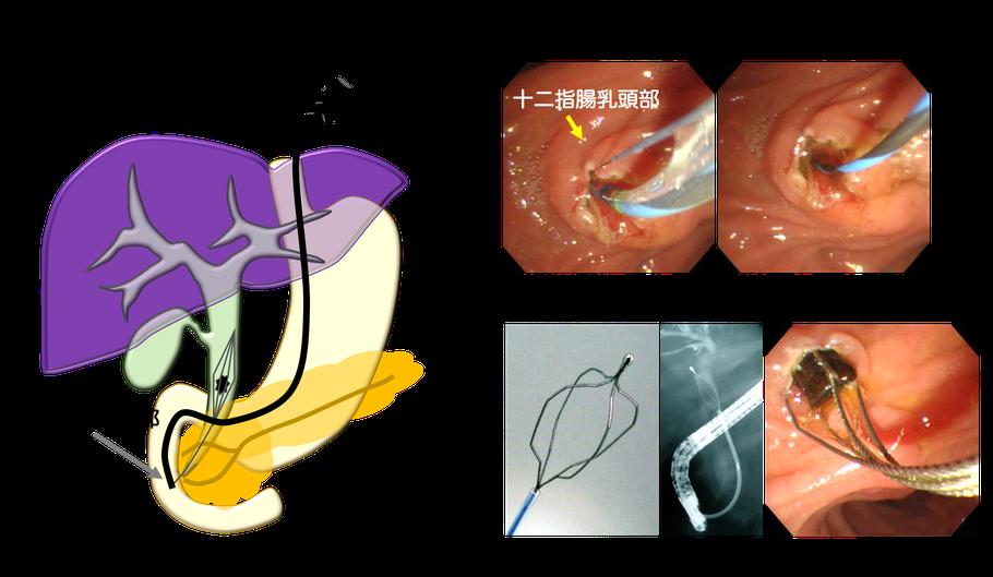 胆嚢 ドレナージ 皮 経 肝 経 母の胆嚢ドレナージ手術日 PTGBD