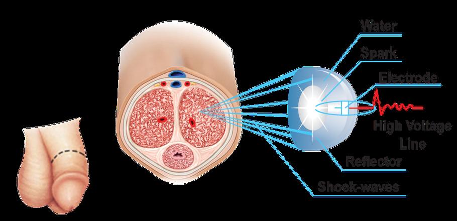 La terapia con onde d'urto (Li-ESWT) a bassa intensità per ...