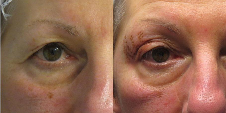 comparazione del prima e dopo di un intervento di blefaroplastica col plexr in alessandria