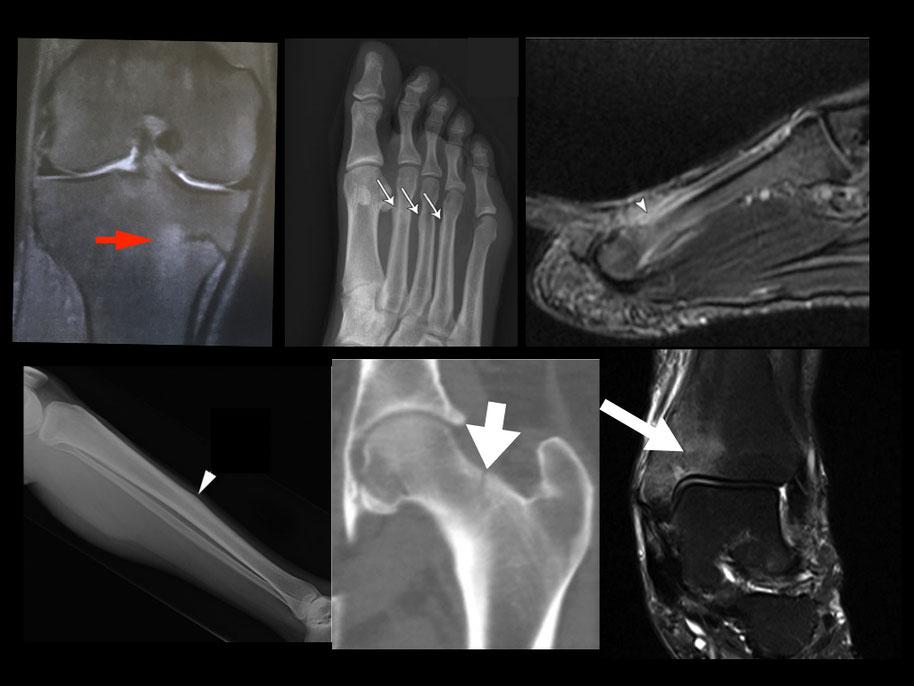 Fracture fatigue Dr Rémi chirurgie orthopédique du sport, Toulouse Croix du Sud