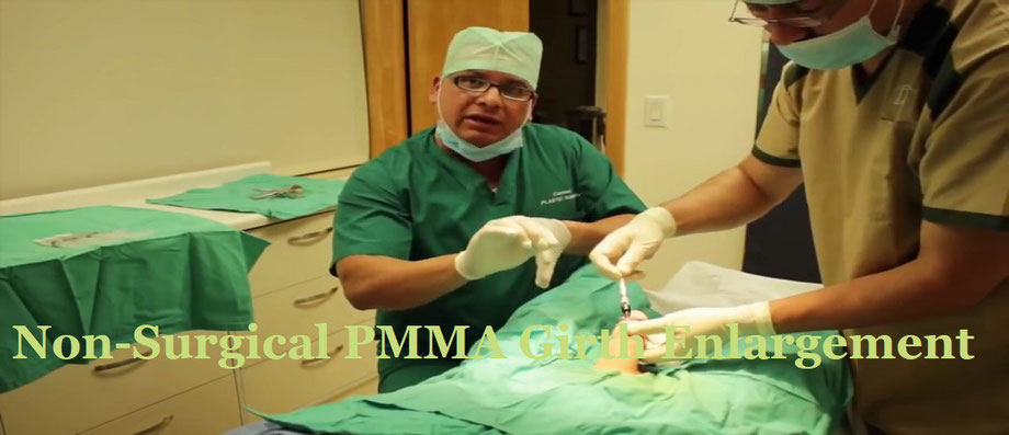 Non-Surgical Medical PMMA Girth Enlargement