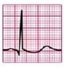EKG ST-Senkung Muldenförmig Digitalis