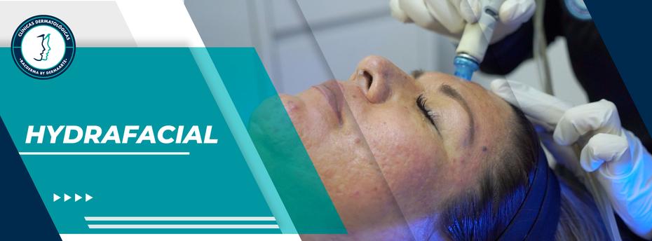 Limpieza facial hydrafacial  Racderma,  limpieza profunda, microdermoabrasión, dermoabrasión, elimina impirezas, elimina piel muerta, limpieza para acné, limpieza facial,