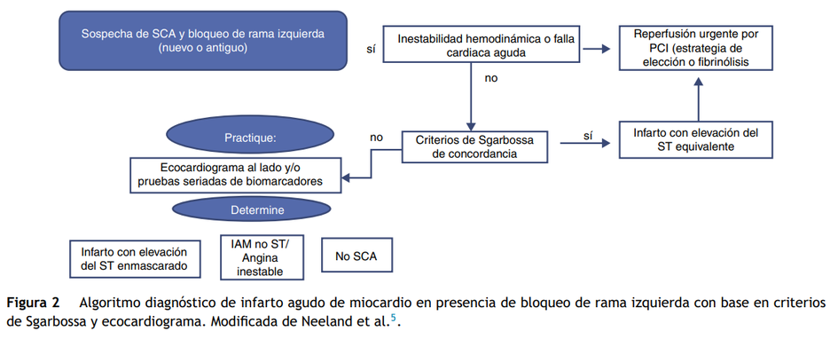 Algoritmo diagnostico de Infarto agudo de miocardio en presencia de bloqueo de rama izquierda, criterios de sgarbossa