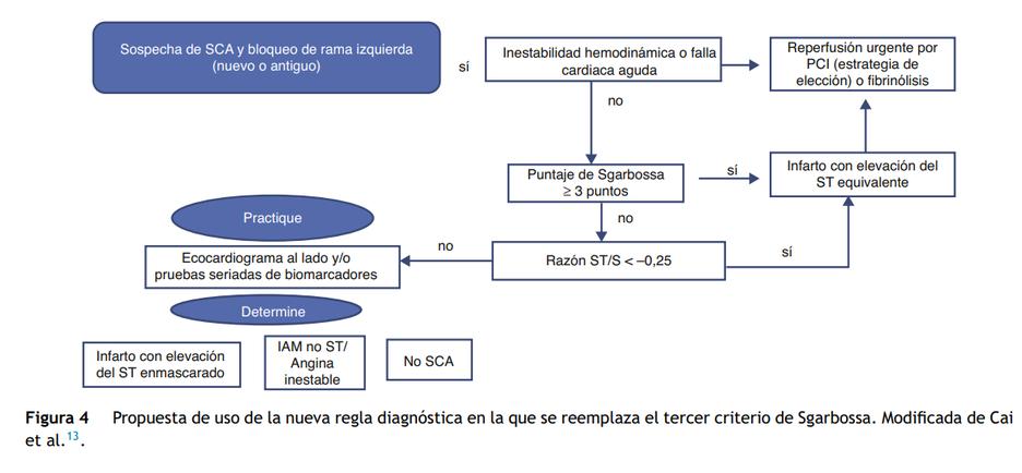 Nueva regla diagnostica que reemplazara  el tercer criterio de sgarbossa, IAM con BCRI, Sgarbossa