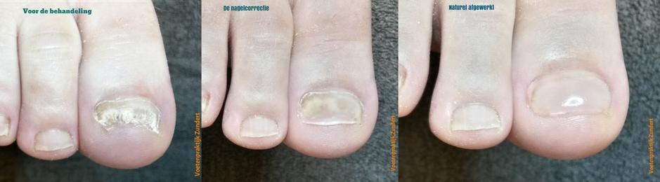 nagelreparatie bij een schimmelnagel  aan de voeten bij medisch pedicure Voetenpraktijk Zundert