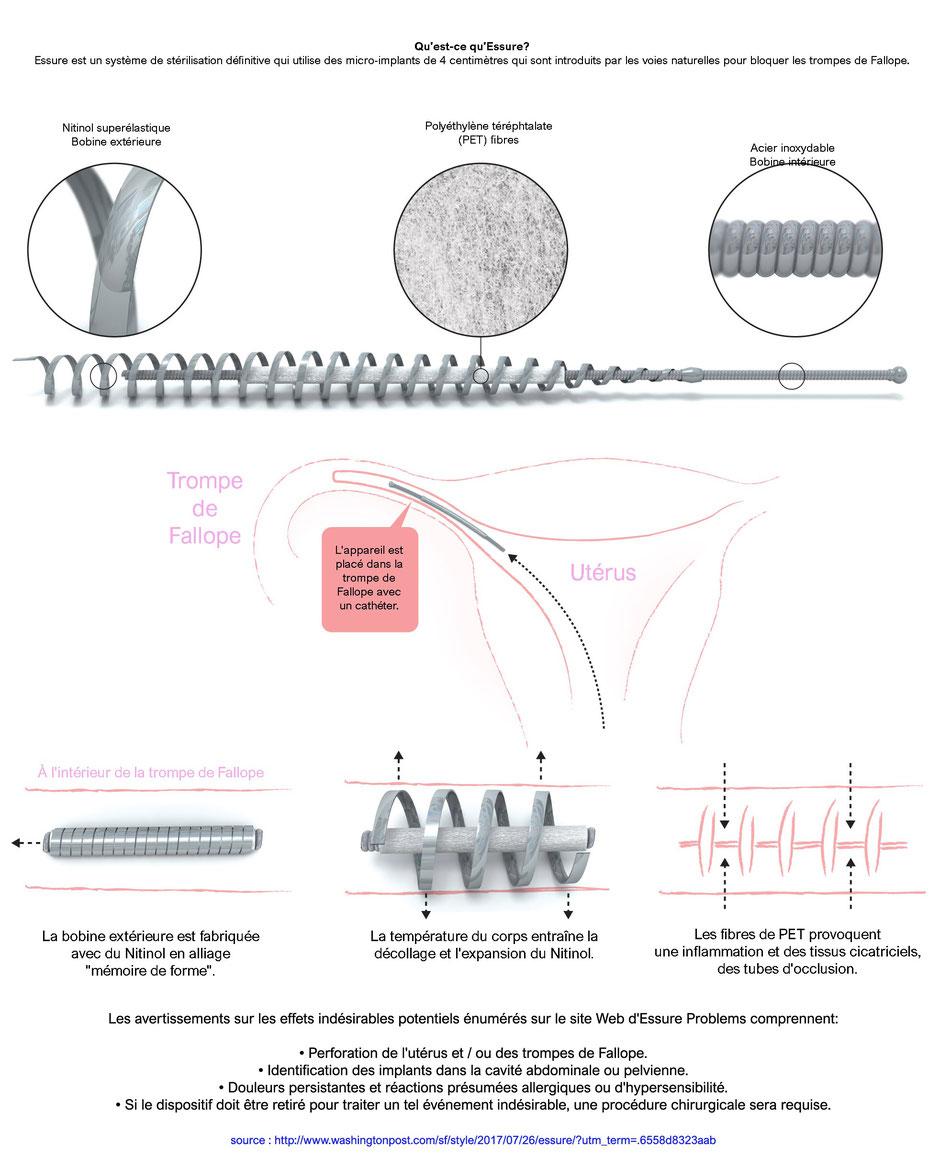 essure-ess205-ess305-stérilisation-tubaire-ligature-des-trompes-de-fallope
