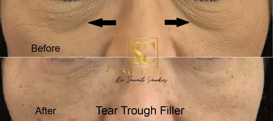 Dr Sarah Parkes tear trough filler