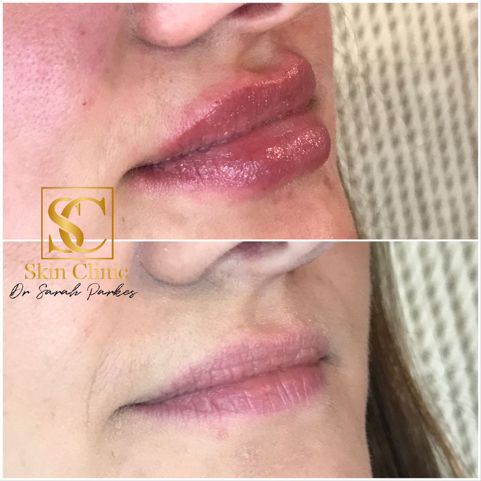 Lip filler before and after skin clinic swansea, Neath Bridgend