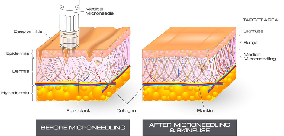 how microneedling works