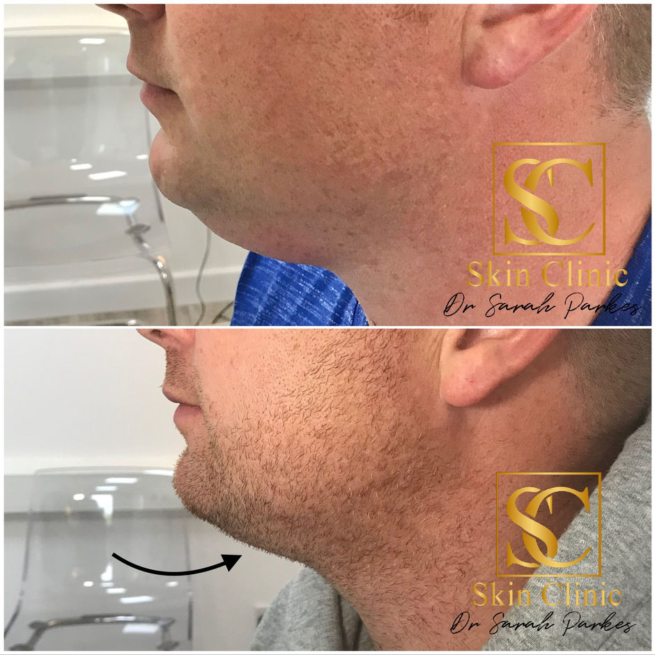 Double chin Aqualyx treatment before and after picture performed at the Skin Clinic Sarah Parkes