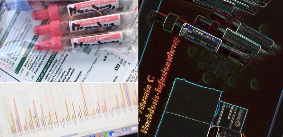 Labordiagnostik zur Trainings- und Ernährungsoptimierung: Bestimmen individueller Amino- und Fettsäureprofile