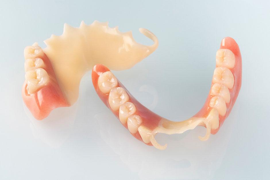 Zahntechnik Wieck, Metallfreier Zahnersatz