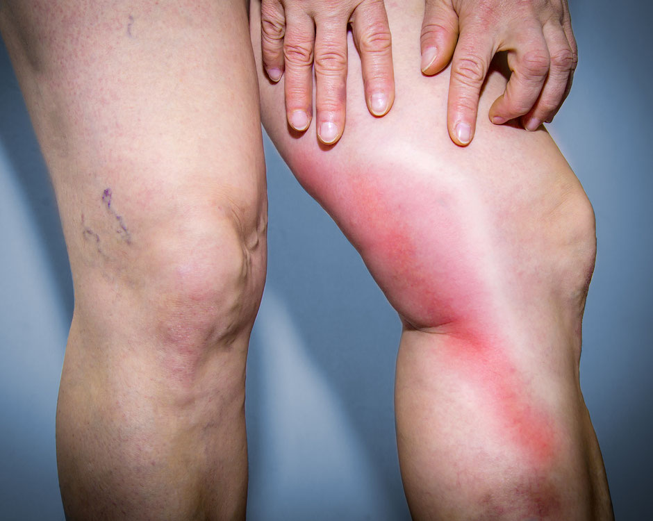 What is Phlebitis? Treatment and Symptoms for