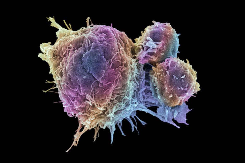 Increasing insulin sensitivity decreases cancer risk