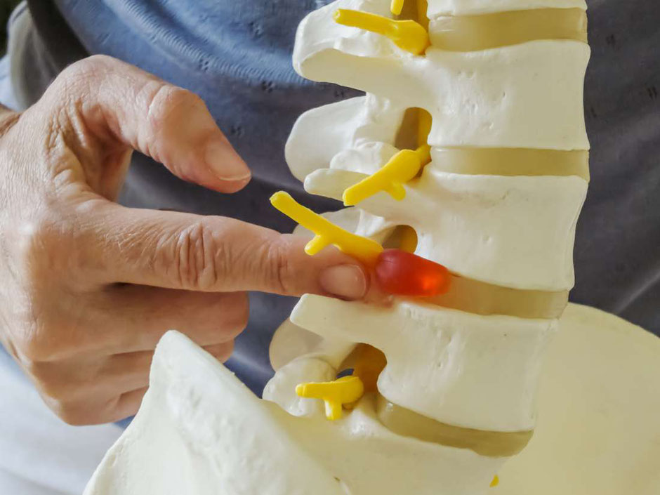 Dehydrated intervertebral disks can cause nerve impingement and pain