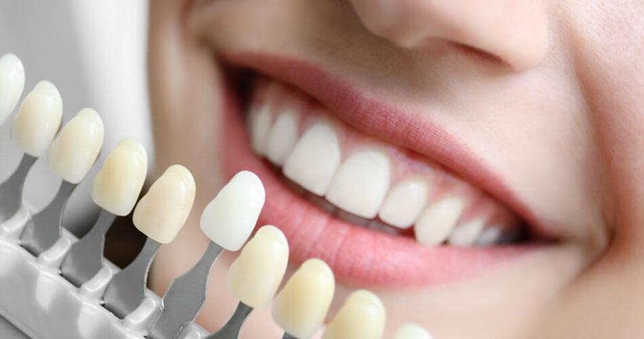 Junge Frau bei der Farbwahl von Zahnersatz