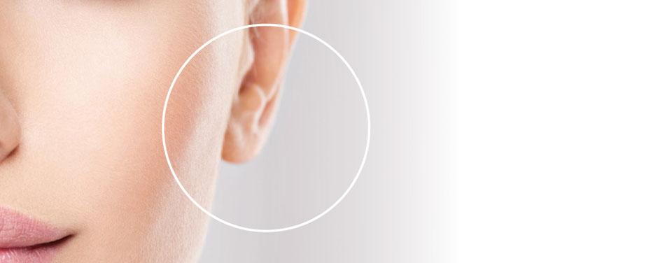 Ohrenläppchenkorrektur bei Bargello AESTHETIK in Gießen