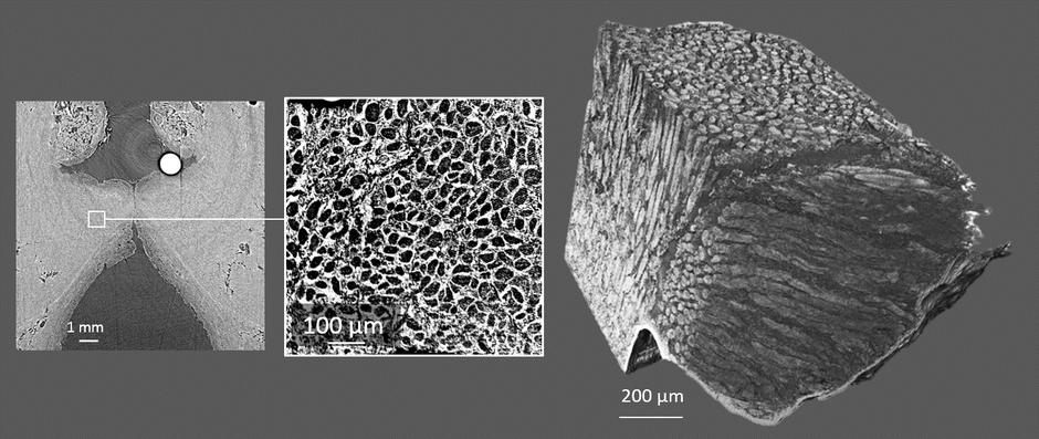 Image : microtomographie aux rayons X du pli vocal humain. A gauche : vue d'ensemble. Au centre : détail du tissu. A droite : vue 3D des faisceaux de fibres musculaires, de collagène et d'élastine constituant le tissu.