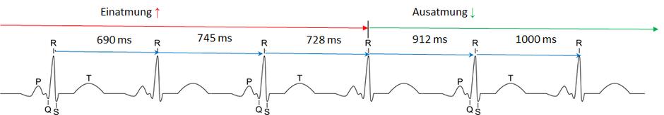 HRV R-R Intervall in Millisekunden