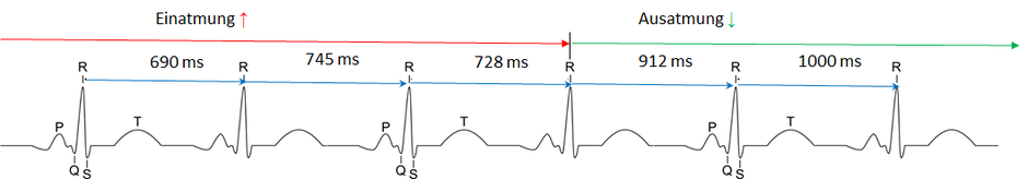 Beispiel wie eine HRV Herzratenvariabilitätsmessung funktioniert