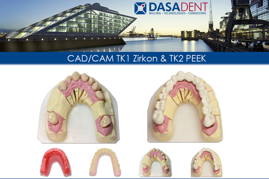 TELESKOP RESTAURATION fräszentrum digital zahntechnik dasadent dental cad cam dentallabor datentransfer schnell speed 24h fertigung