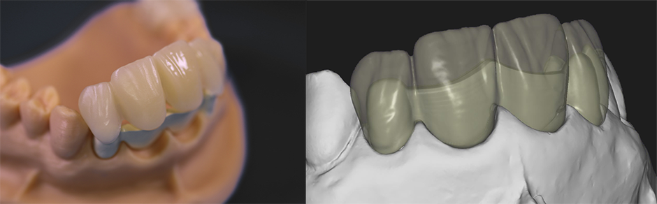 twoinone dental fräszentrum zahntechnik peek
