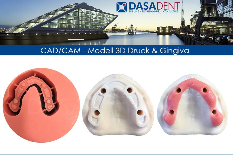 3D Druck dental