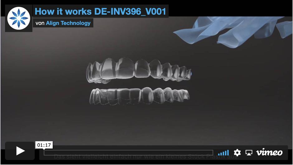 Video für Unsichtbare Invisalign Zahnspangen für Jugendliche und Erwachsene bei Dr. Wiesner Gröbenzell