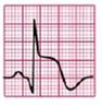 EKG ST-Hebung konkav