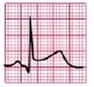 EKG ST-hebung konvex