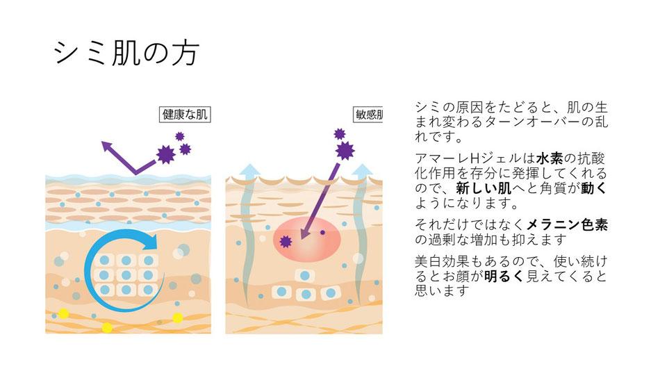 シミの原因をたどると、肌の生まれ変わるターンオーバーの乱れです。アマーレHジェルは水素の抗酸化作用を存分に発揮してくれるので、新しい肌へと角質が動くようになります。それだけではなくメラニン色素の過剰な増加も抑えます。美白効果もあるので、使い続けるとお肌が明るく見えてきます。
