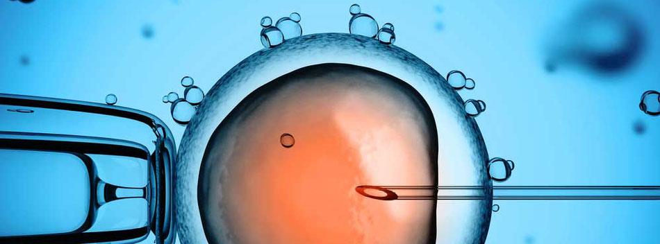 Künstliche Befruchtung (IVF) in Bonn - Kinderwunsch Bonn on