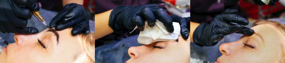 rimozione tatuaggio sopracciglia remover soluzione salina