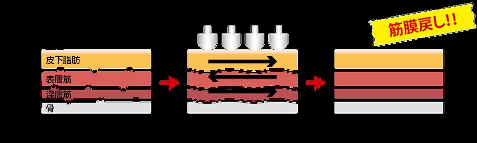Amareのリンパボーラーは筋膜を正常に戻せます