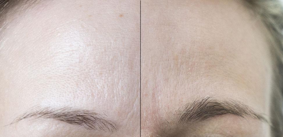 linkes Bild: nach der Microdermabrasion; rechtes Bild: davor