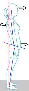 足から骨盤・背骨・頸部まで影響。イメージ画。