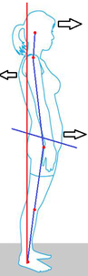 足のアンバランスは、骨盤・背骨・頸部まで影響。イメージ画。