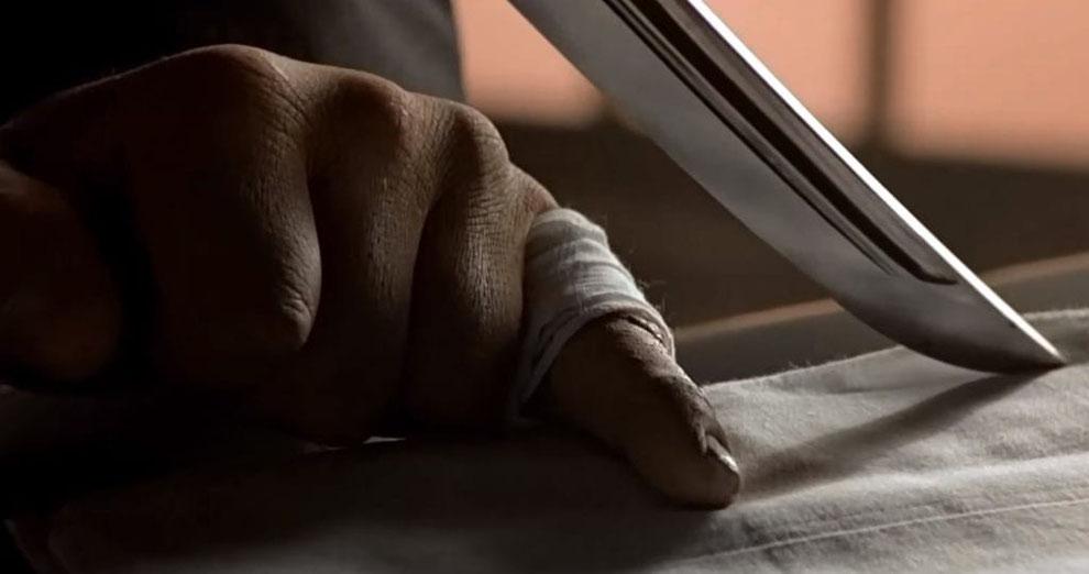 """""""Yubitsume"""", das rituelle Abtrennen des kleinen Fingers"""
