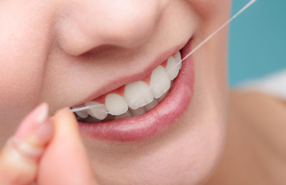 Mit Zahnseide erreichen sie eine wirkungsvolle Zahnprophylaxe.