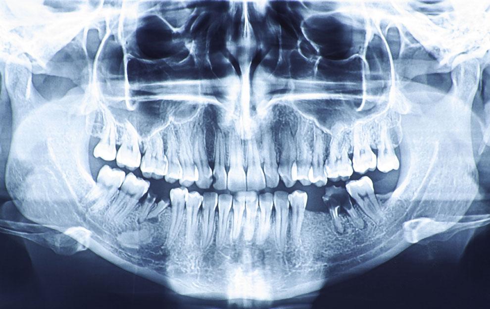 Röntgenaufnahme eines Kiefers.