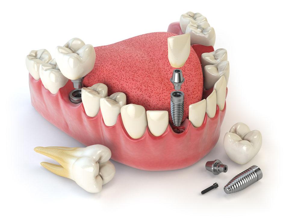 Implantate sind Zahnersatz durch künstliche Zahnwurzeln.